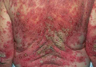Eczema di palme al bambino